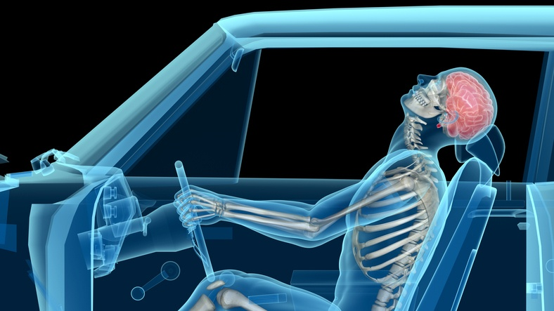 Personal Injury Treatment for Auto Accidents