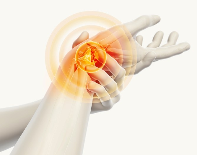 Chiropractor in Burlington | Best carpal tunnel syndrome doctor